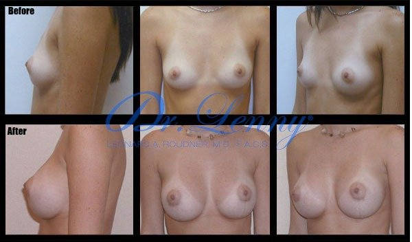Miami Breast Augmentation Before After Photo