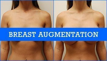 Breast enlargement photo surgery