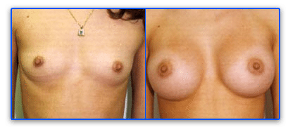 breast augmentation miami before and after gallery