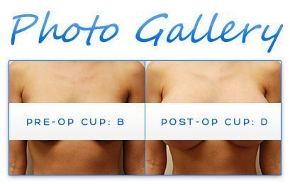 Miami Breast Augmentation Before and After Photo Gallery