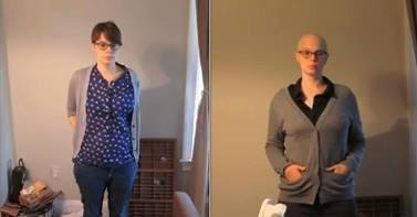 Emily Helck shares her battle with breast cancer in this time lapse video