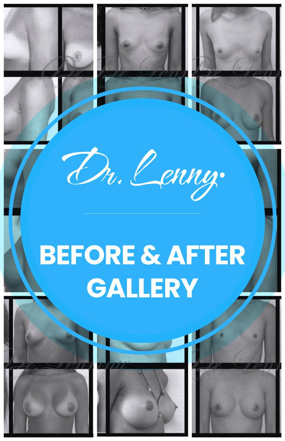 Dr  Lenny Roudner - Miami Plastic Surgeon - Coral Gables